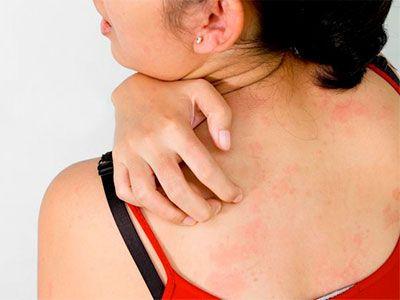 Атопический дерматит и сухость кожи у взрослых. Основные принципы лечения