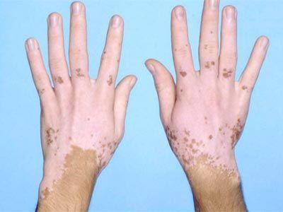 Білі плями на шкірі: Топ 7 причин появи