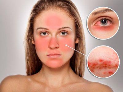 Опыт применения препарата Стоп Демодекс в лечении сочетанных патологий кожи лица