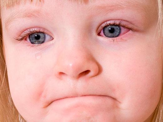 детские красные глаза