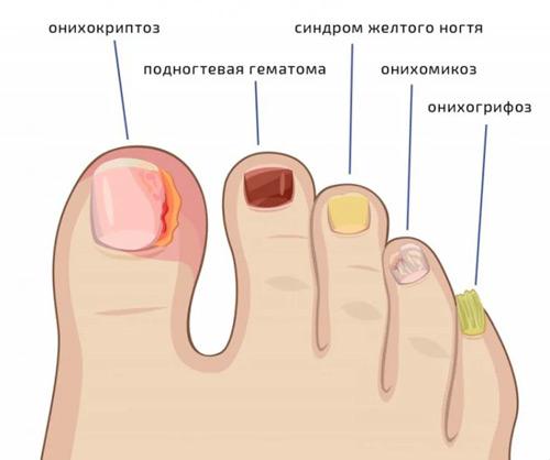 Как распознать грибок ногтя
