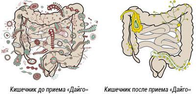 влияние дайго на кишечник