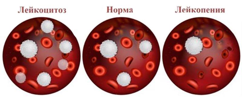 Почему понижены лейкоциты в крови