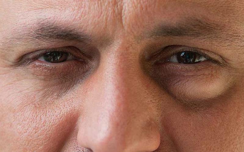 Что такое мешки под глазами и как они выглядят