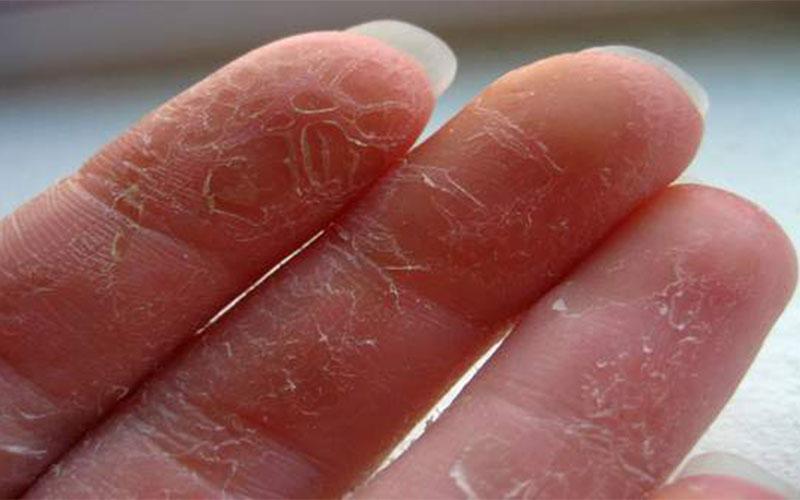 Почему облазит кожа на ладонях и пальцах