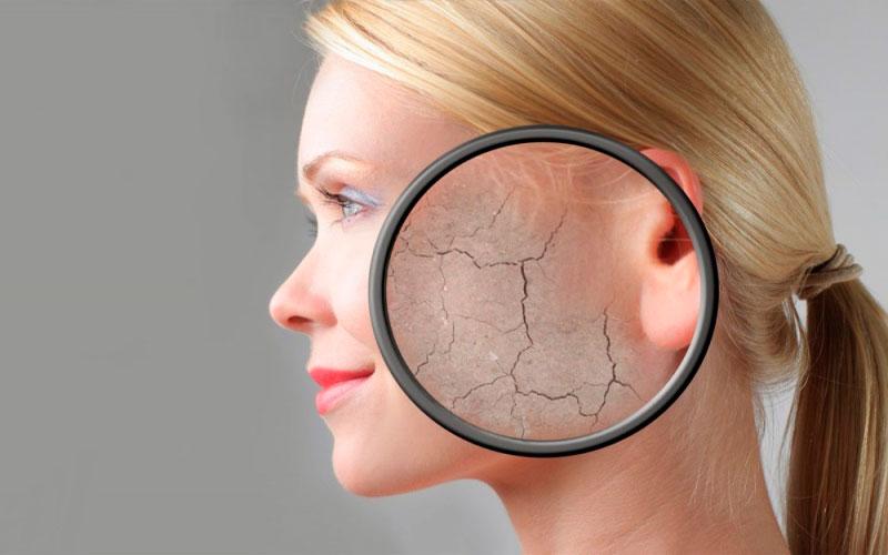 >Почему шелушится кожа на лице и голове?